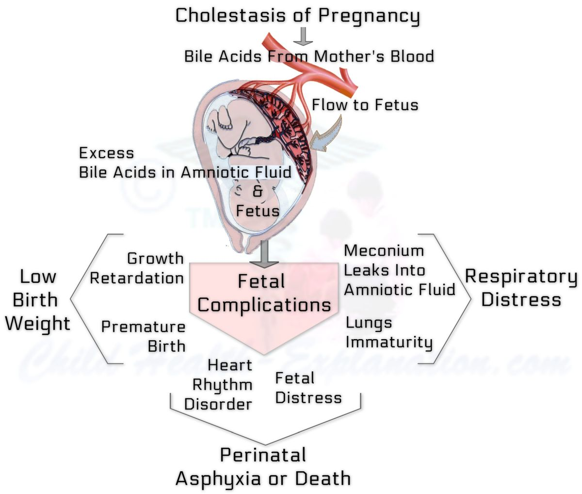 Fetal Complications of Cholestasis of Pregnancy