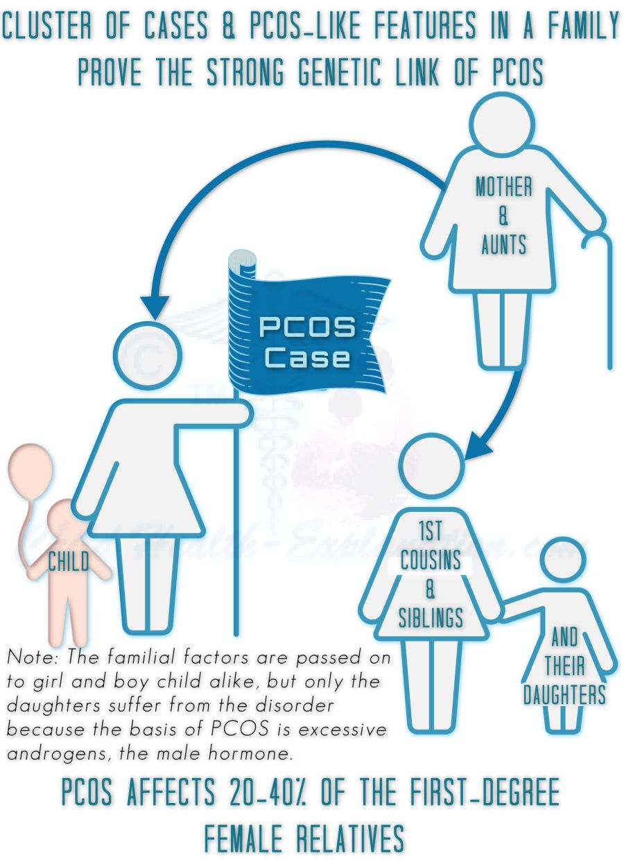 PCOS Has A Strong Genetic Association