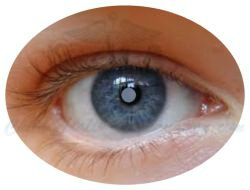 Cataract is Opacification of the Eye Lens