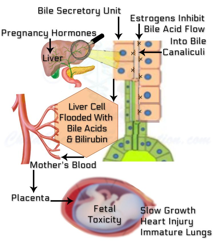 Cholestasis Of Pregnancy: The Disordered Physiological Processes