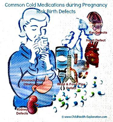 Over The Counter Common Cold Medications Risk Birth Defects