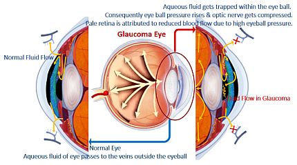 Development of Glaucoma Eye