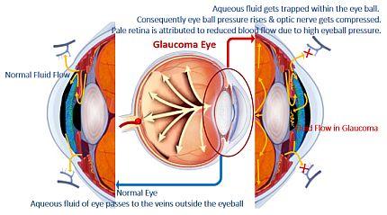 Development of Glaucoma Eye
