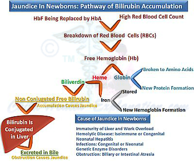 Jaundice in Newborns: Pathway of Bilirubin Accumulation