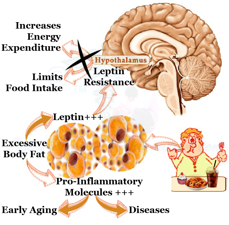 Leptin Resistance Increases Food Cravings & Jeopardizes Energy Expenditure Due To Growing Insulin Resistance