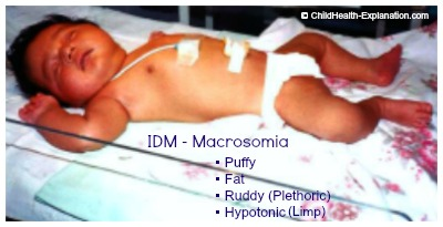 Macrosomia: Large For Gestational Age Baby