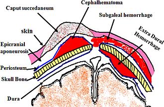 Birth Injuries: Different types of Head Hematoma seen in Newborns