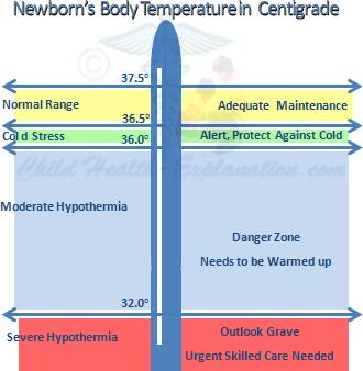 Newborn Nursing: Temperature Maintenance Is Crucial & Forms the Basis of Newborn Care