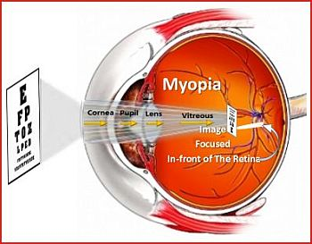 Myopia: Image is Focused In-front of Retina