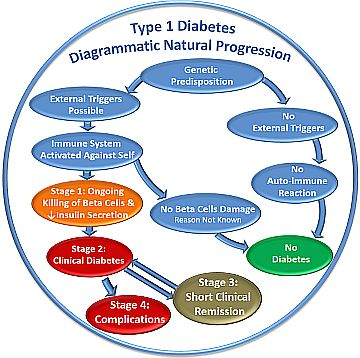Type 1 Diabetes T1D progresses through 4 stages.
