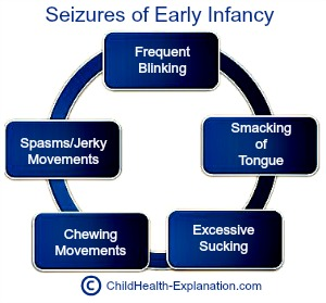 Seizures in First Three Months of Life Are Often Subtle