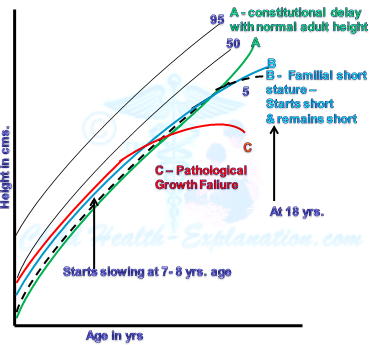 Percentile Growth Curve Shift with Growth Disorders