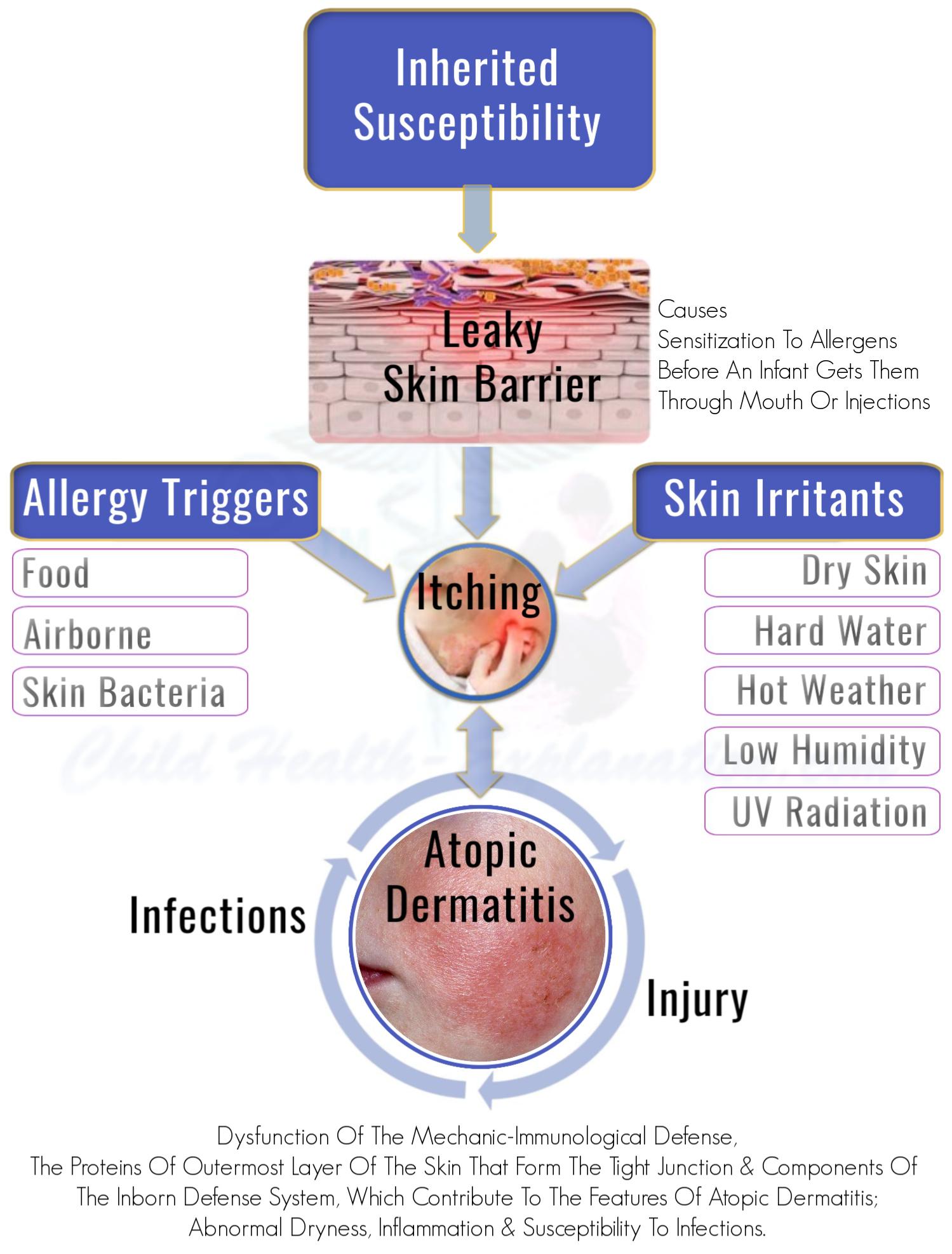 Pathogenesis of Atopic Dermatitis: Mechanism of Development of The Disease