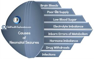 Common Causes of Seizures in Neonatal Period