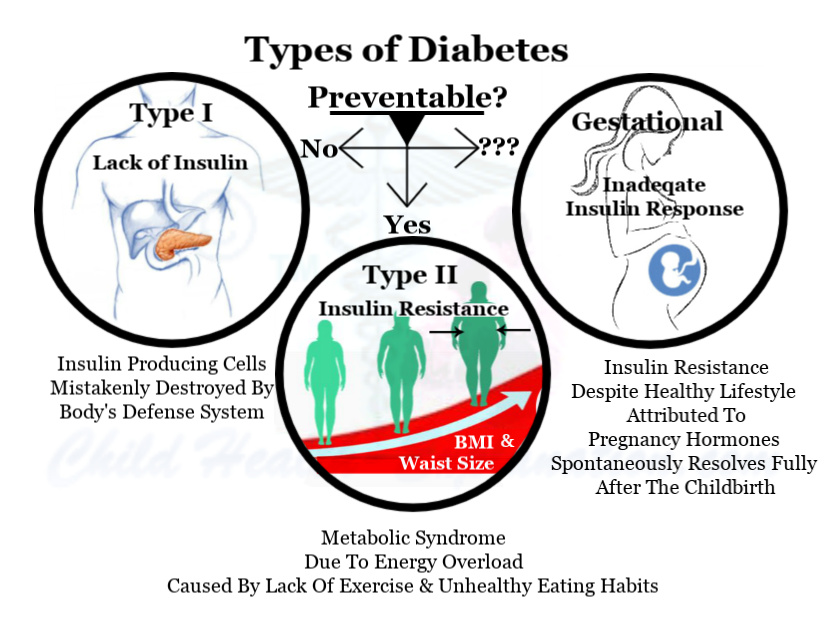 Link Between Obesity And Diabetes