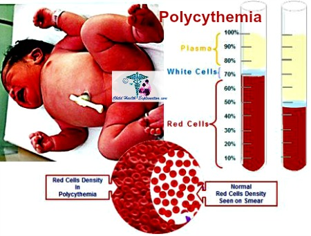 Poor Oxygen Availabolity in Womb Leads to Polycythemia