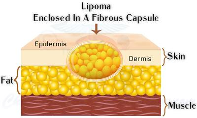 Lipoma: Growing Lump of Fat Under The Skin